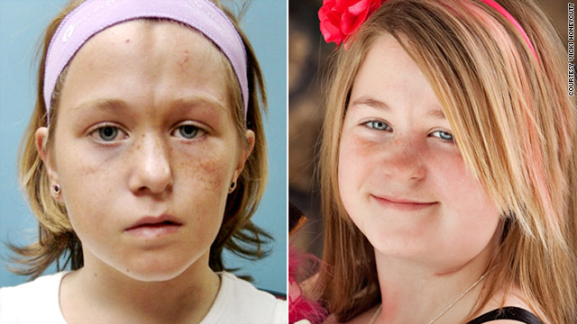 When Christine Honeycutt was five years old, one side of her face seemed to mysteriously stop growing.