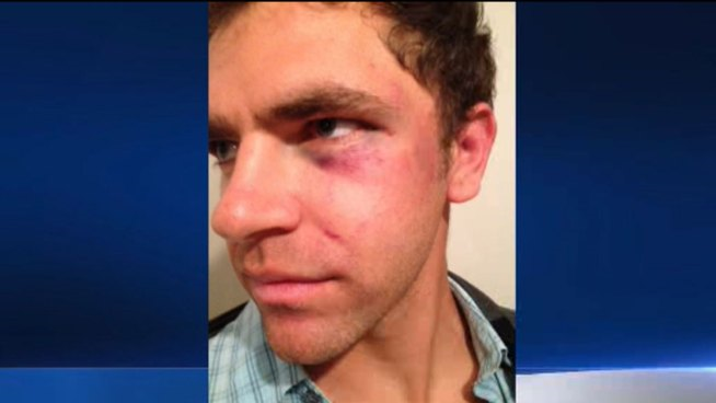 Hawthorne Police Accused of Beating Deaf Man